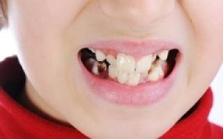 Черные пятна на зубах у ребенка