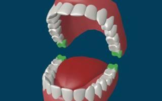 Лезет зуб мудрости и болит