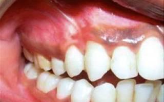 Почернение зубов возле десен