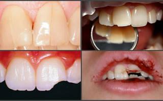 Что делать если скололся зуб