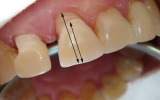 Десна отошла от зуба что делать