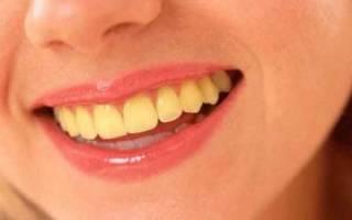 Желтый налет на зубах как избавиться