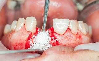Наращивание зубной кости для имплантации