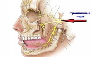 Ломит зубы и болит голова