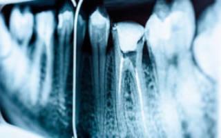 Гной на корне зуба