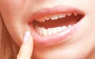Стоматит лечение у взрослых в домашних