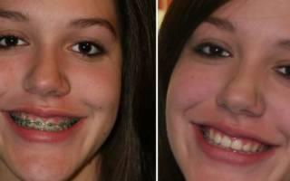 Брекеты до и после лечения
