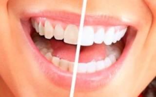 Чем очистить налет на зубах