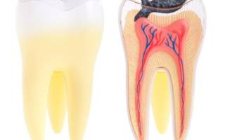 Боль зуба при надкусывании