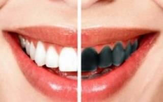 От чего чернеет зуб