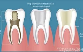 Как пломбируют каналы зуба