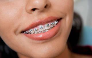 Почему зубы болят после установки брекетов