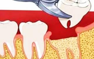 После вырывания зуба
