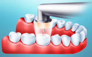 Озонирование зубов у детей