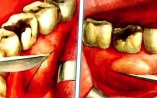 Воспаление щеки – симптомы, диагностика, лечение