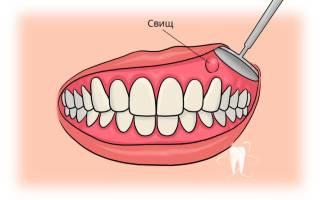 Как лечить зубной свищ