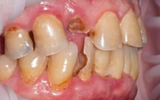 Когда сломался зуб – что делать