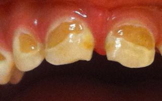 Желтый налет на зубах у ребенка