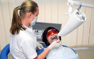 Фотоотбеливание зубов: сила света