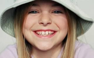 Зубы по возрасту у детей