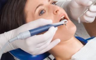 Как лечить воспаление зуба в домашних условиях