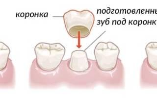 Когда ставят коронку на зуб