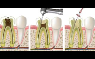 Пульпит после удаления зуба