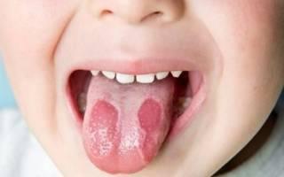Красные пятна на языке у ребенка причины