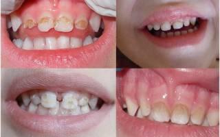 Налет на зубах у ребенка 2 года