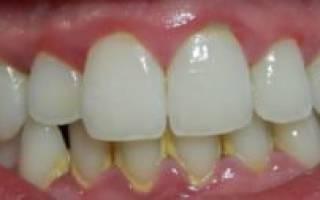 Убрать налет с зубов в домашних условиях
