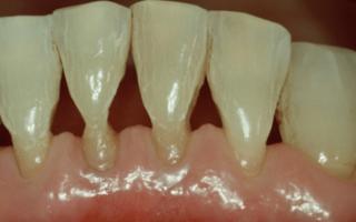 Что делать если оголяются шейки зубов