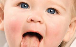 Чем лечить стоматит ребенку 1 год
