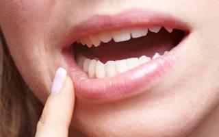 Покраснение слизистой полости рта