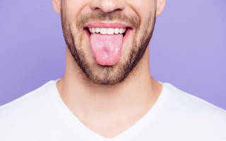 Сухость во рту белый налет на языке