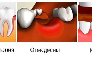 Болит удаленный зуб