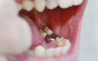 Альвеолит после удаления зуба симптомы лечение