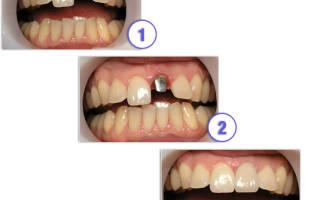 Как устанавливаются зубные вкладки
