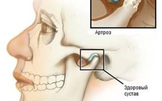 Почему болит челюсть с правой стороны