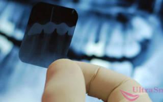 Как называется снимок всех зубов