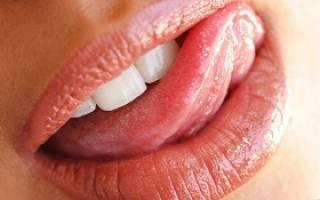 Лечение стоматита на языке у взрослых