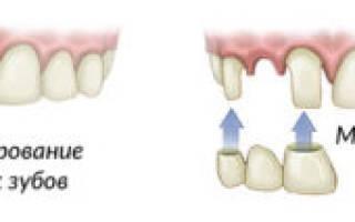 Мостовидные несъемные зубные протезы – описание и виды