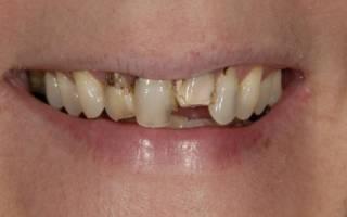 Почему гниют зубы