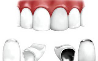 Ноет зуб под коронкой что делать