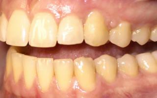 Почему клыки желтее остальных зубов