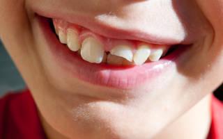 У ребенка откололся зуб – что делать при этом