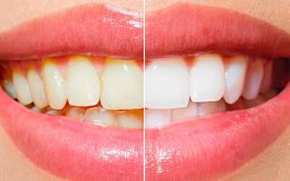 Внутриканальное отбеливание зубов: путь к свету