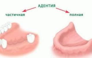 Как выглядят зубные протезы