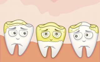 Отвалился зубной камень