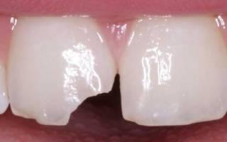 Шатается молочный зуб